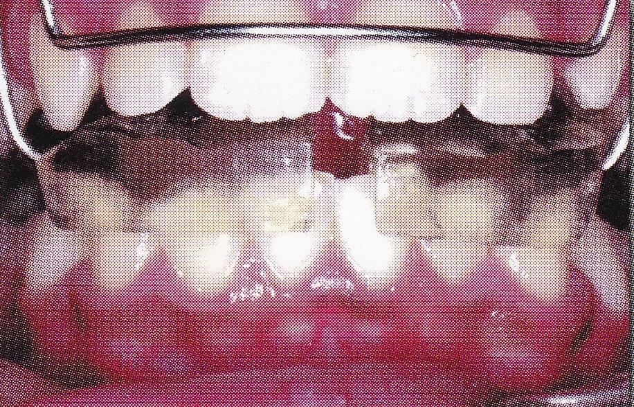 出っ歯の治療中
